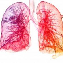 Una dieta sana disminuye el riesgo de Enfermedad Pulmonar Obstructiva Crónica (EPOC)