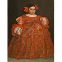 Síndrome de Prader-Willi: una enfermedad rara ligada a la obesidad.